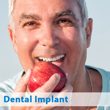 Arlington dental implants